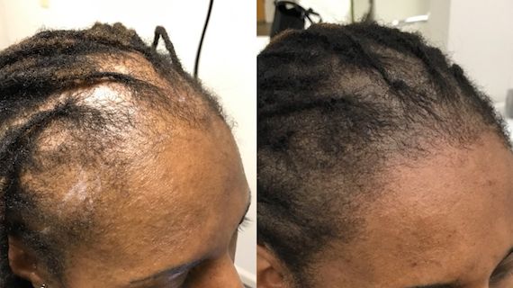 Ex6 - Scalp Micropigmentation - Hairline Studios